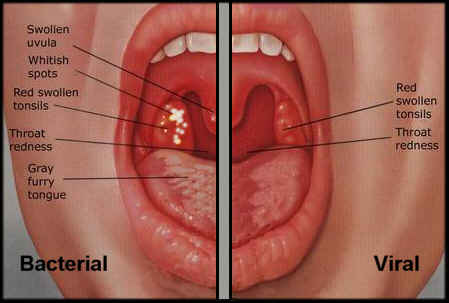 lip sores treatment vaginitis